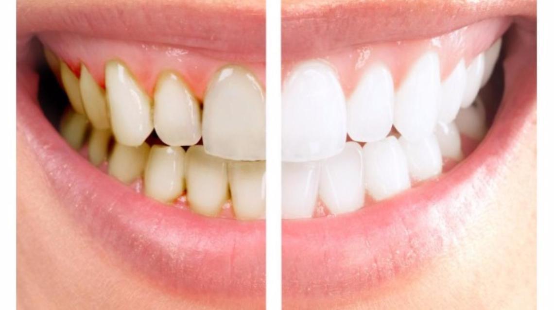 12 Cara menghilangkan Karang Gigi Tanpa Perlu ke Dokter Gigi
